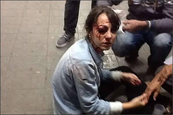 Repórter Giuliana Vallone da Folha de São Paulo é baleada no olho por PM que atirou bala de borracha contra ela. Ato ocorreu no protesto contra o aumento na tarifa de ônibus. Foto: : Diego Zanchetta/Estadão